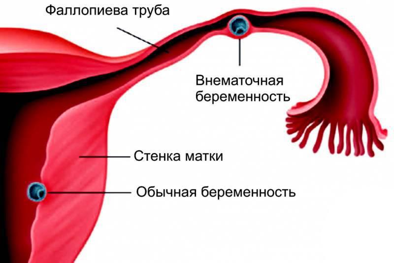 Во время беременности болит живот на ранних сроках