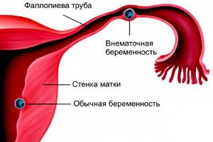 Болит живот при беременности на ранних сроках, болит живот при беременности, болит низ живота при беременности, болит живот во время беременности, почему болит живот при беременности, болит низ живота на ранних сроках беременности