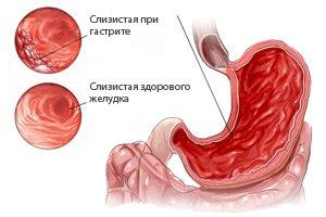 18232-recepty-blyud-dlya-teh-u-kogo-gastrit