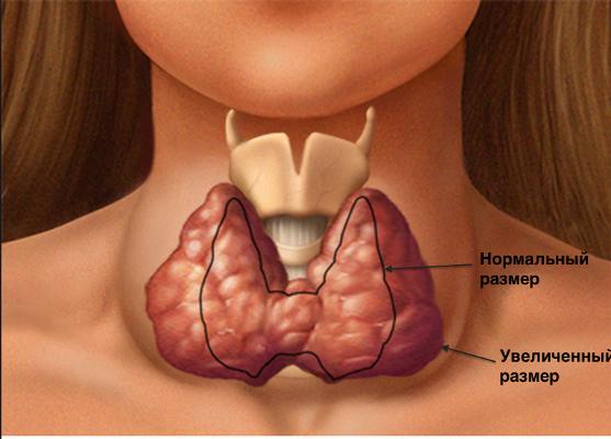 При сахарном диабете щитовидная железа недостаточность