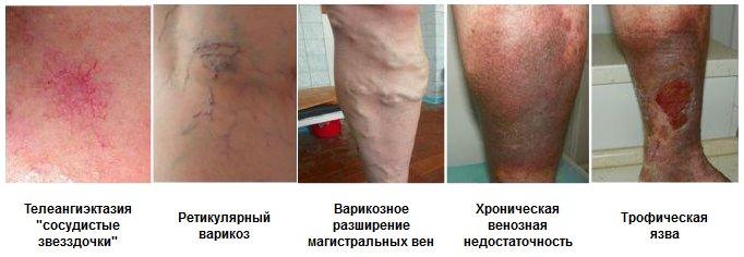 39007-simptomi-varikoza