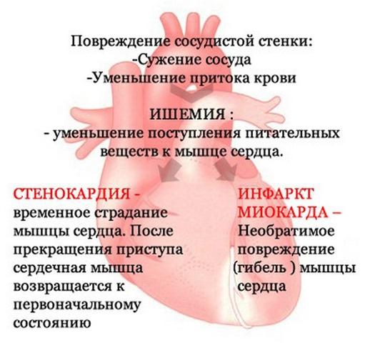 Боли в сердце симптомы, боли в сердце при остеохондрозе, боли в ...