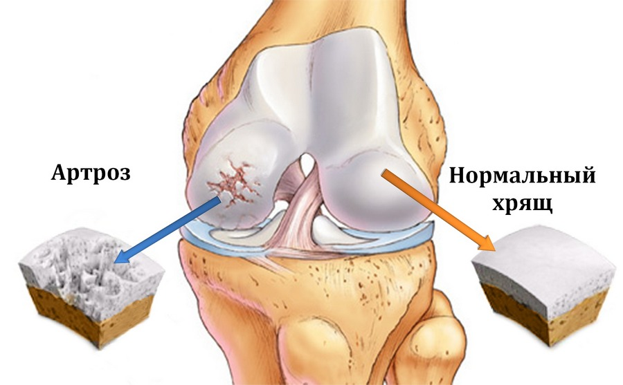 Картинки по запросу Симптомы и лечение артроза суставов