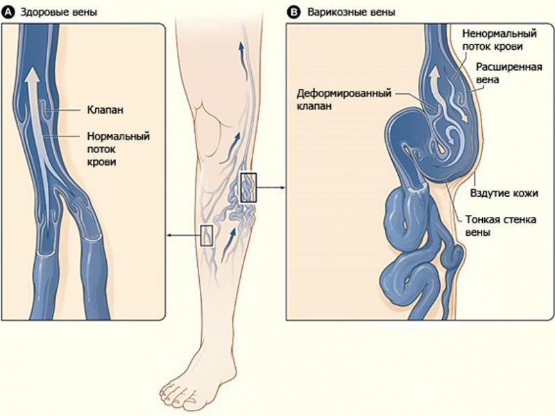 Острый тромбоз глубоких вен дифференциальная диагностика