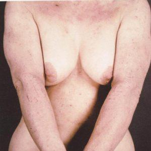 atopicheskiy dermatiti