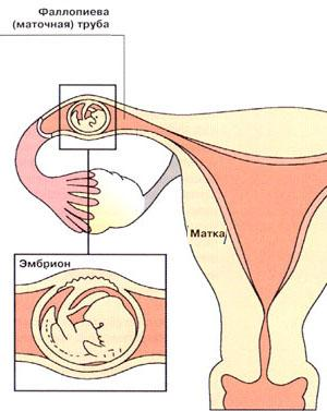 внематочная беременность на ранних сроках симптомы