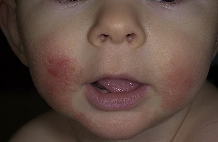 Атопический дерматит фото у взрослых на руках как лечить