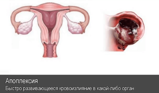 Киста желтого тела правого и левого яичника  лечение