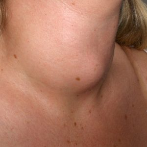 Thyroid-Nodules1
