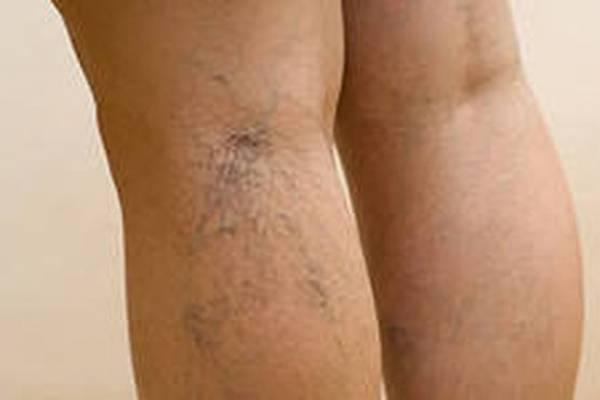 Схема лечения варикоза нижних конечностей