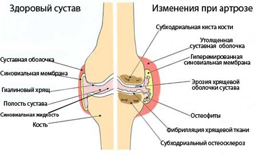 Деформирующий артроз суставов: причины возникновения артрозов ...