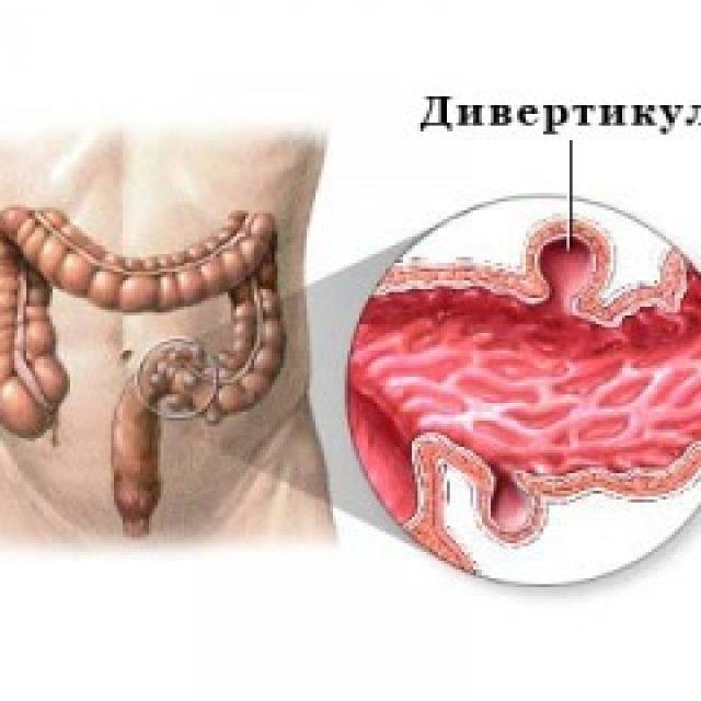 Дивертикулит толстого кишечника лечение