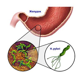 helik-test-ili-dyhatelnyj-test-na-nalichie-helikobakternoj-infektsii-2
