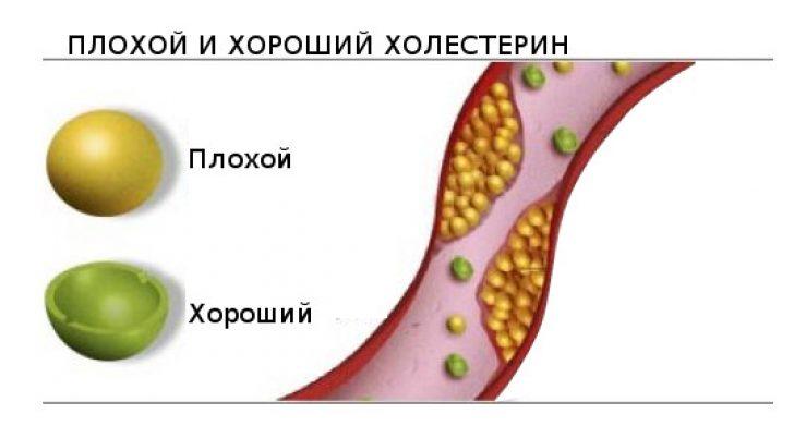 Что такое повышенный холестерин и как лечить