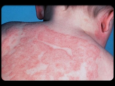 Что такое инфекционный дерматит и как он появляется