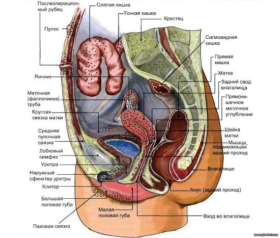 oblasti-porageniya-pri-endometrioze