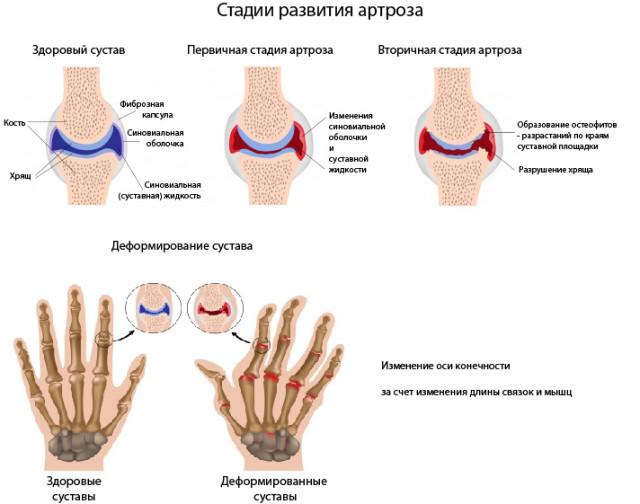 stadii_artroza-640x504