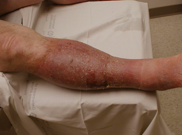 venous-insufficiency-pictures-4