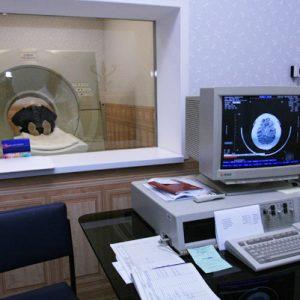 Компьютерная томография мозга 1