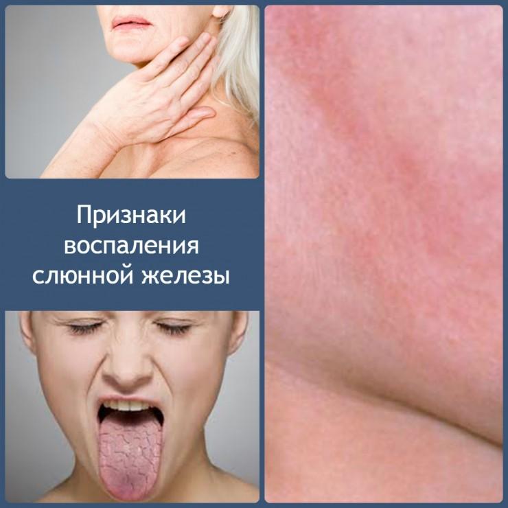 признаки-воспаления-слюнной-железы-740x740