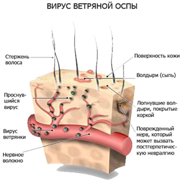 1442528611_vetryanka-u-detey-simptomy-lechenie-foto-4