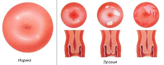 Основные причины и симптомы эрозии шейки матки, особенности протекания эрозии при беременности