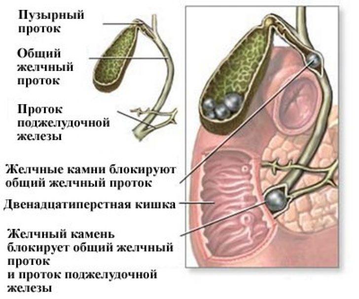 Эмпиема желчного пузыря клиника диагностика лечение