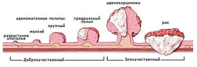 полипы в кишечнике симптомы это опухоль