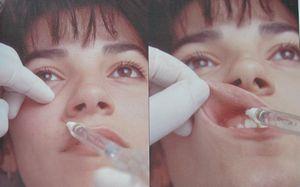 glava-9-predoperacionnaja-podgotovka-i-anestezija-3