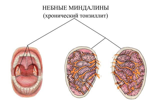 Препараты при лечении гепатита с их цены