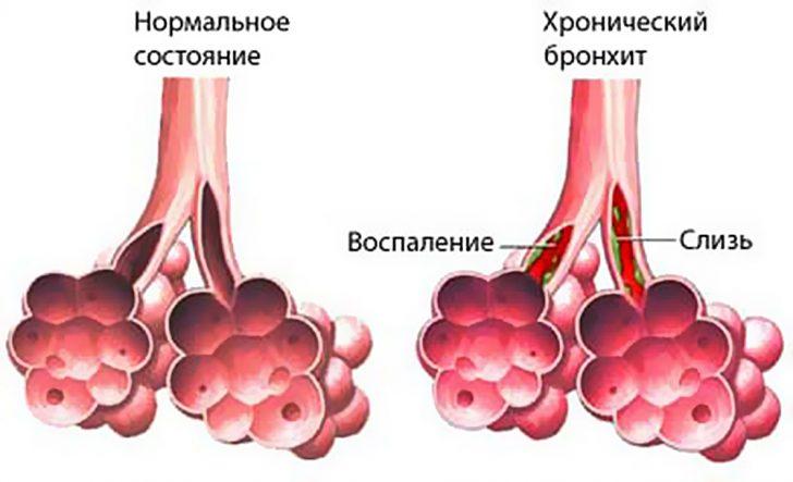 khronicheskij-bronkhit