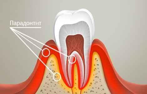 lechenie-parodontita-v-domashnix-usloviyax