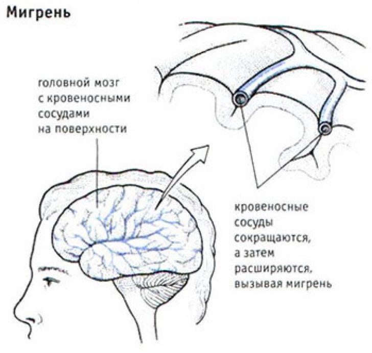 Мигрень с аурой опухоль