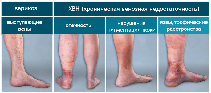 Варикоз ног начальная стадия фото