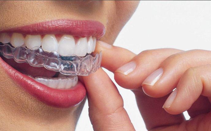 ortodoncia-invisible-en-madrid