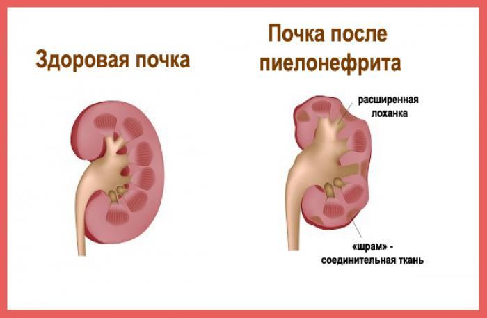 Методы лечения иванова