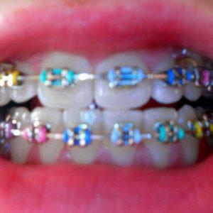 rainbow-braces-for-teeth