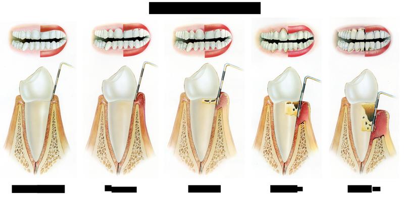 stadii-razvitiya-parodontita
