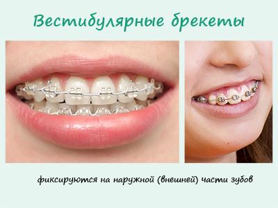 vestibular_braces_small
