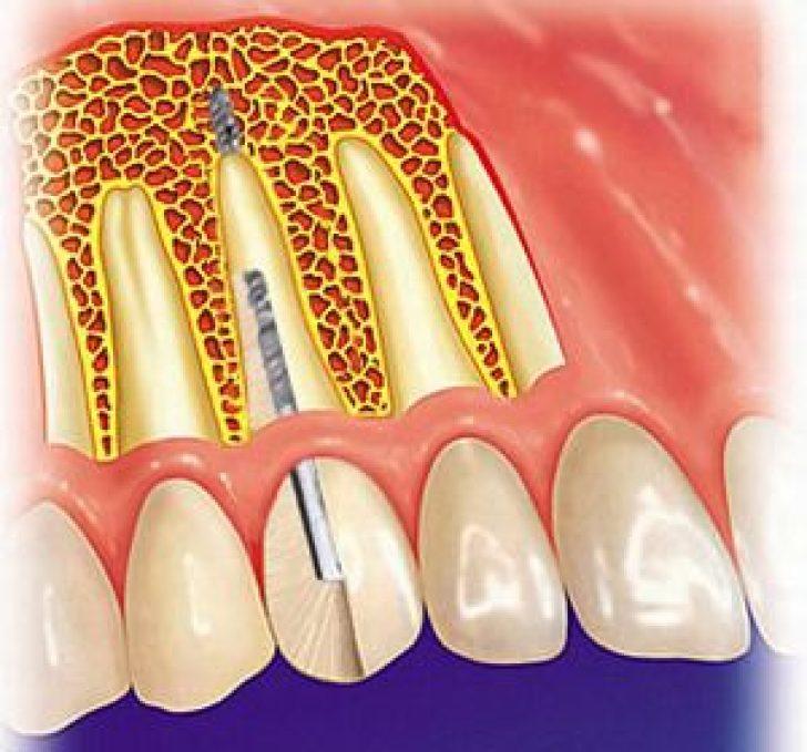 Имплантация зубов в караганде отзывы