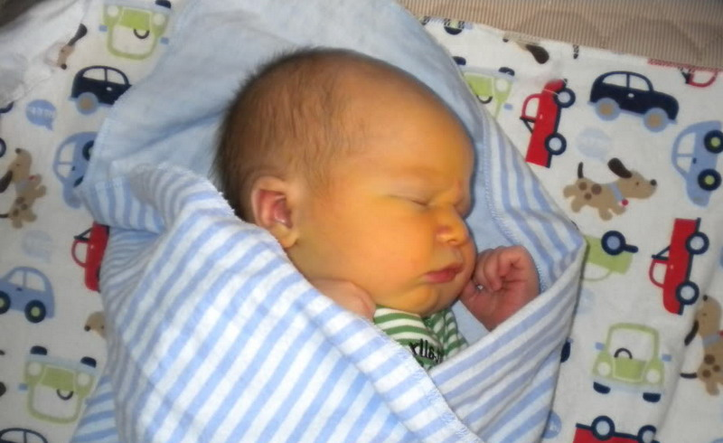 Желтуха-у-новорожденных