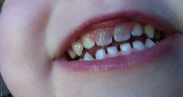Почему у ребенка 3 года чернеют зубы
