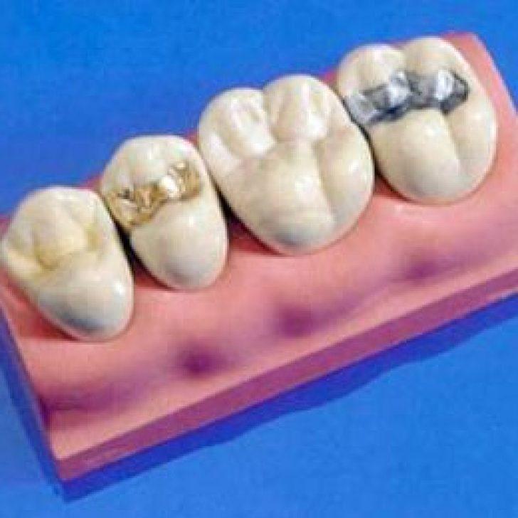 Пломбы на зубы из чего их делают