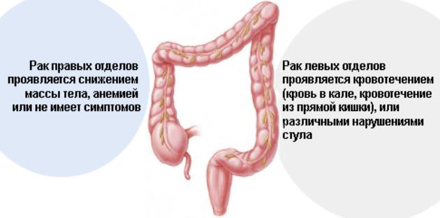 Рак прямой кишки  симптомы фото первые признаки