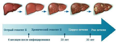 Точки заболевания печени