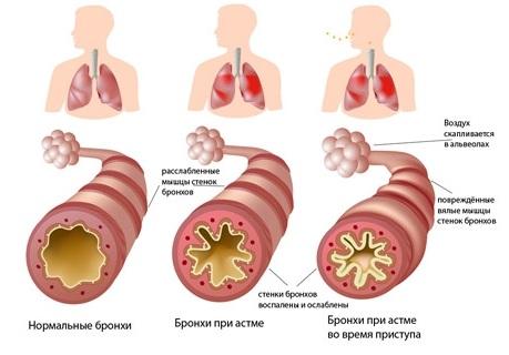 astma41