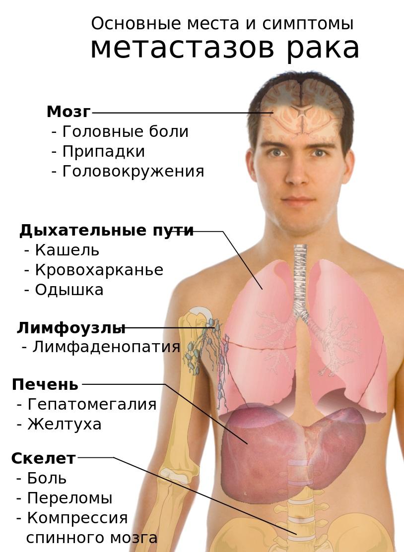методы диагностики аллергии кожные
