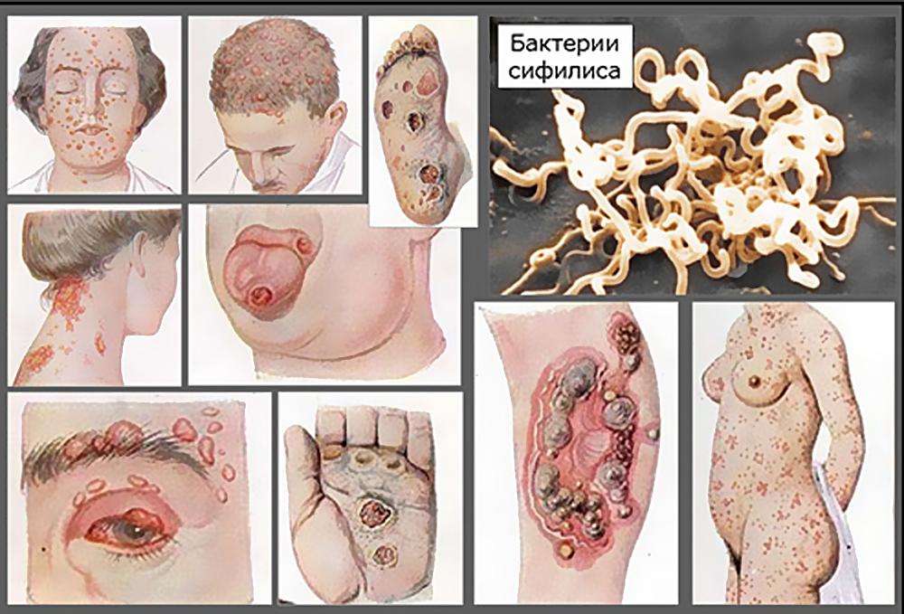 pozdnij-vrozhdennyj-sifilis1