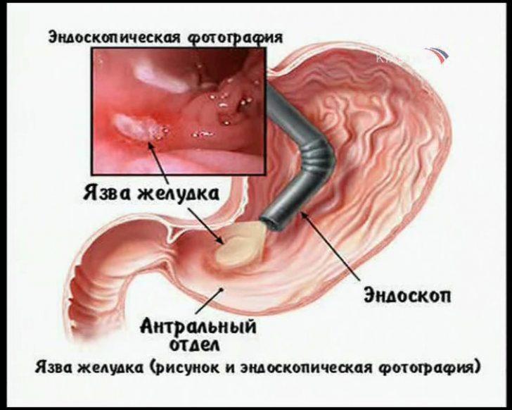 Как снять боль при язве желудка в домашних условиях