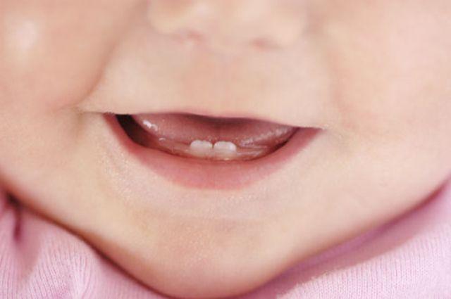 prorezivanie-zubov-u-detei1